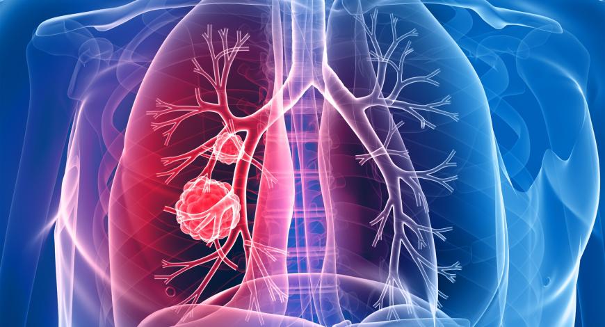 5 cauze ale cancerului pulmonar la nefumători