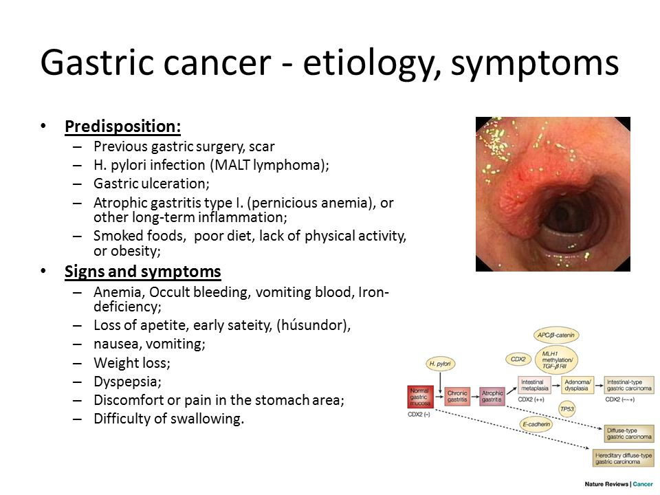 gastric cancer and anemia papilloma virus bruciore intimo