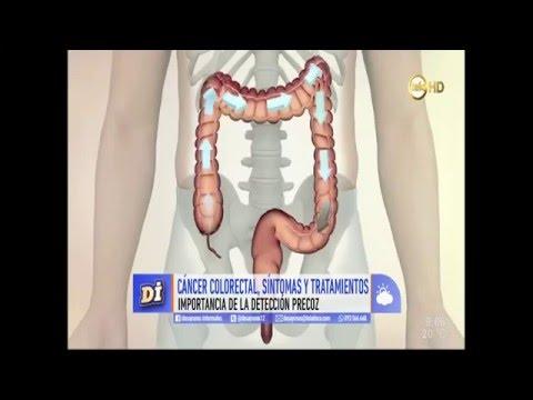 se trateaza cancerul la colon)