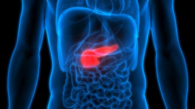 cancer de pancreas que comer)