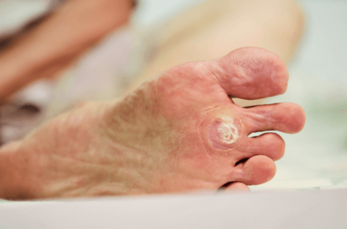 wart foot symptoms)
