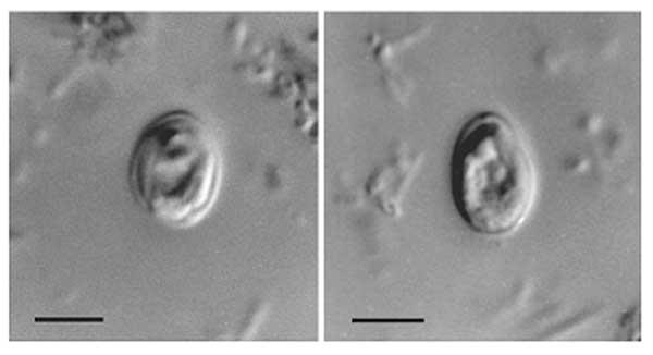 papilloma seno cause como eliminar los oxiuros en el ano