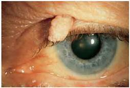 squamous cell papilloma eyelid)