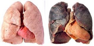 hpv infection and lung cancer