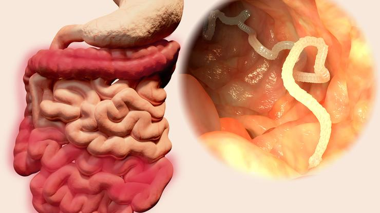 paraziti u organizmu simptomi