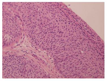 papiloma urotelial tratamento