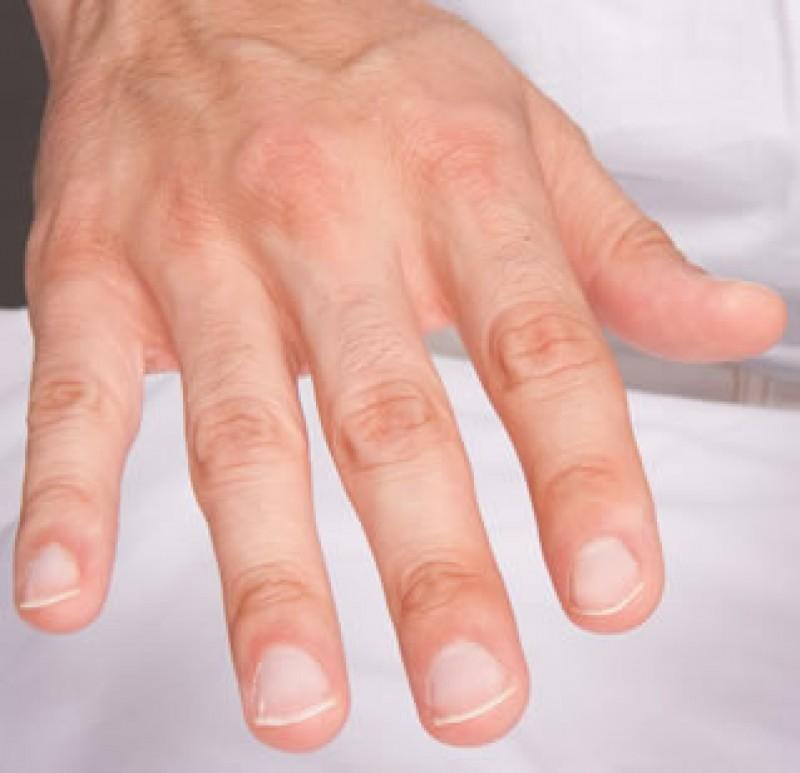 cancer pulmonar unghii