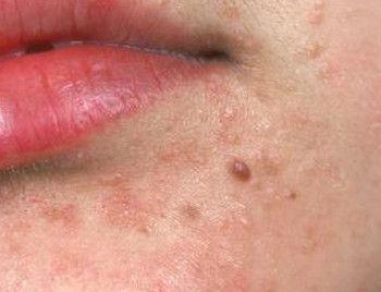 human papillomavirus infection womens health helminth disease symptoms