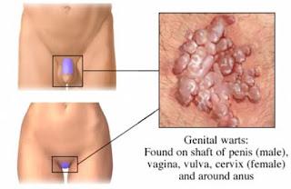 bubite de la paraziti intestinali)