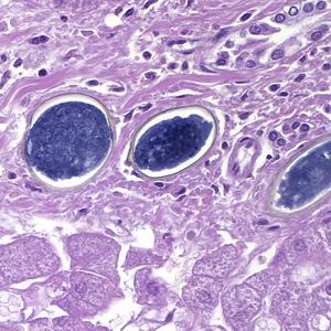 schistosomiasis rectal biopsy