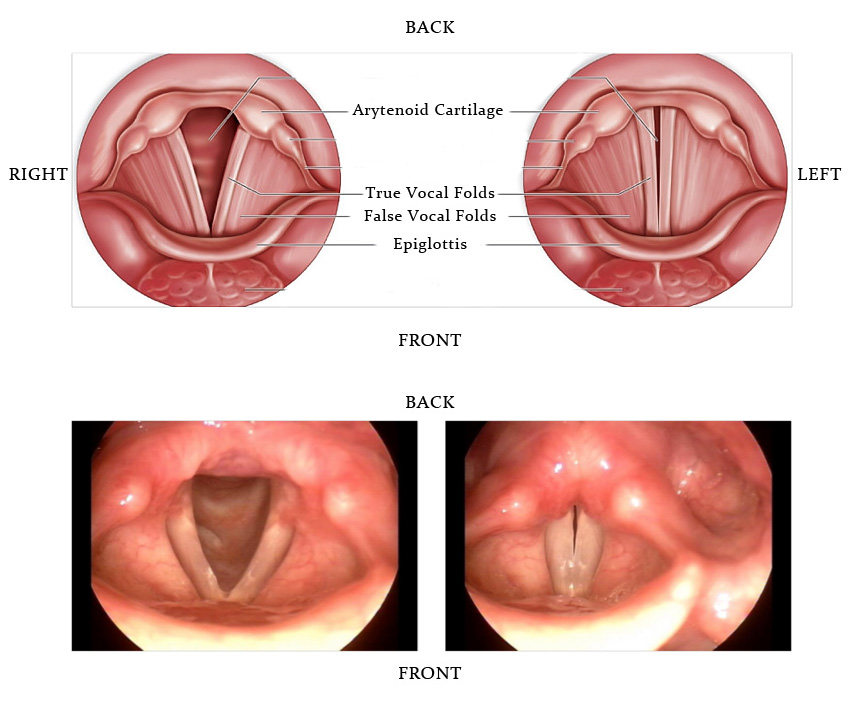 Paralizia coardelor vocale
