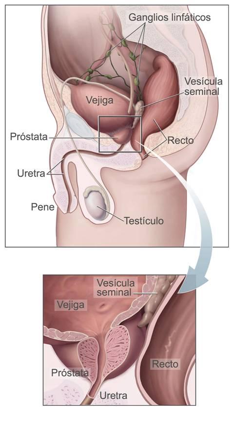 cancer de prostata bolivia)