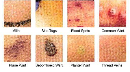 hpv skin spots)