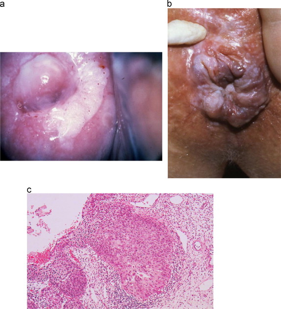 papillomavirus lesions treatment neuroendocrine cancer merkel cell