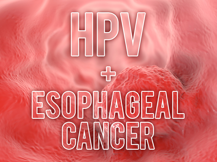esophagus cancer and hpv
