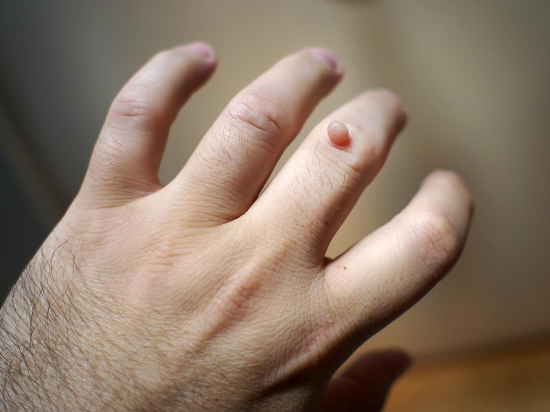 warts on hands while pregnant papillomas in bladder
