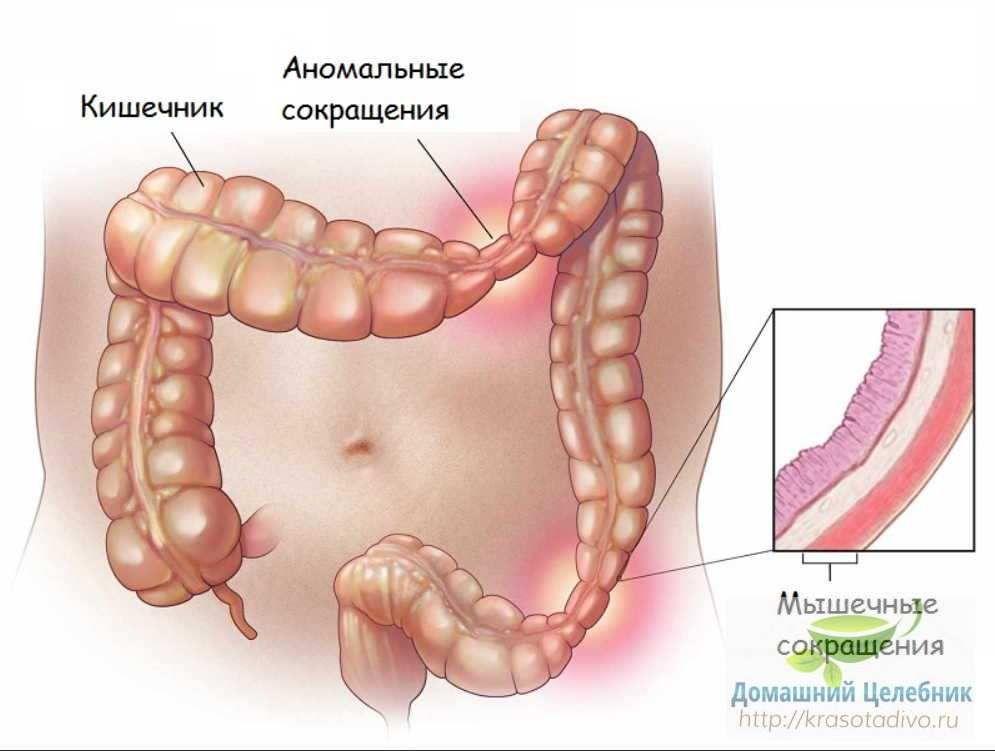 cancerul de colon definitie
