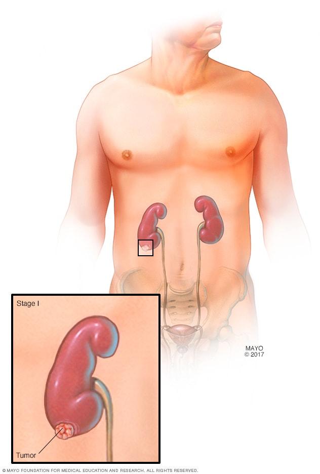 cancer renal diagnostico