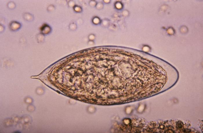 schistosoma haematobium)