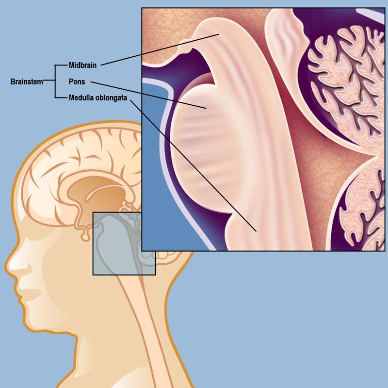 cancer cerebral dipg)