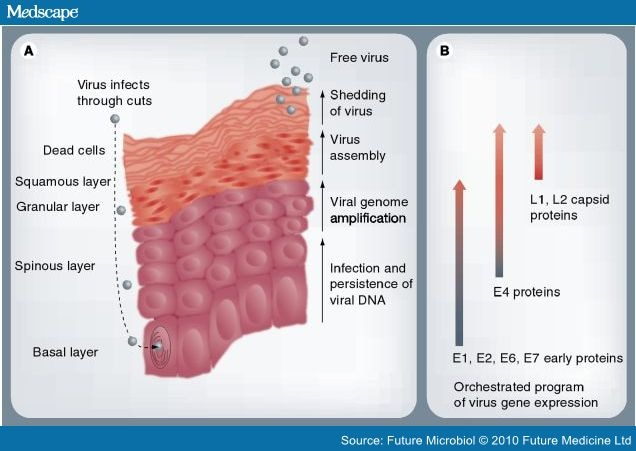 hpv virus medscape