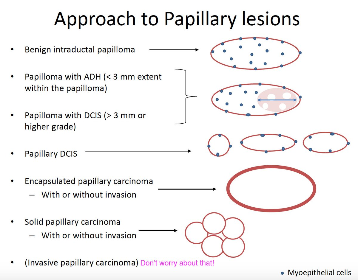 papillary breast lesion pictures