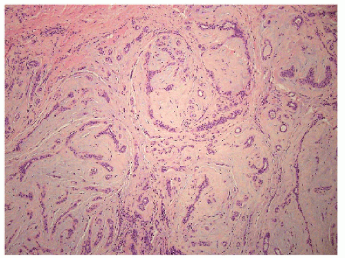 papillary sclerosing lesion)