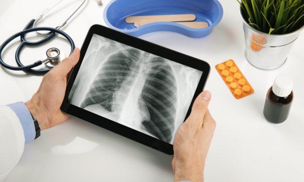 Cancerul pulmonar cu celule mici - sperante pentru un prognostic mai bun?