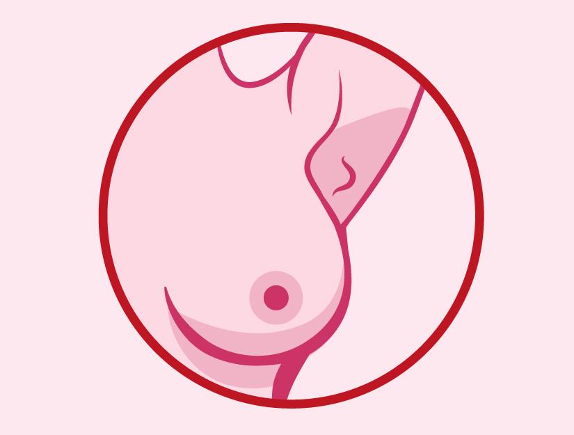 ovarian cancer laparoscopy