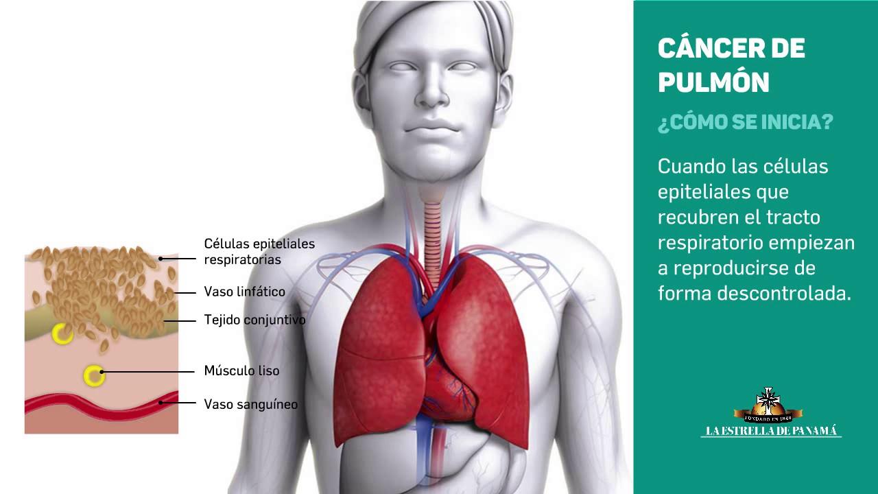 que es el cancer de pulmon
