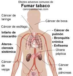 causas cancer laringe