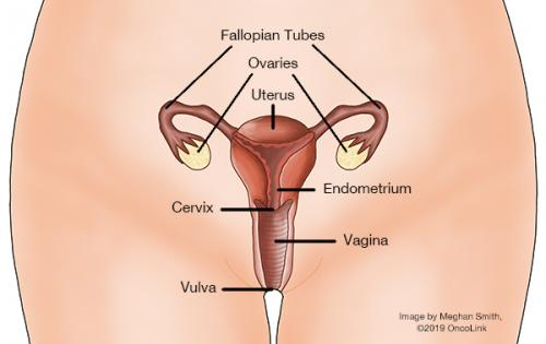 cancer of uterine cervix)