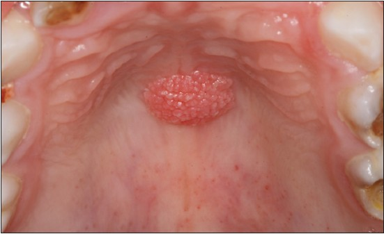 squamous papilloma in throat)