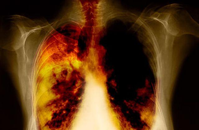 Cancerul pulmonar la copii: cum se manifesta si cum se trateaza