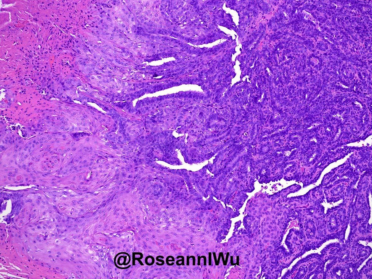 cervical cancer transmission papilloma al palato