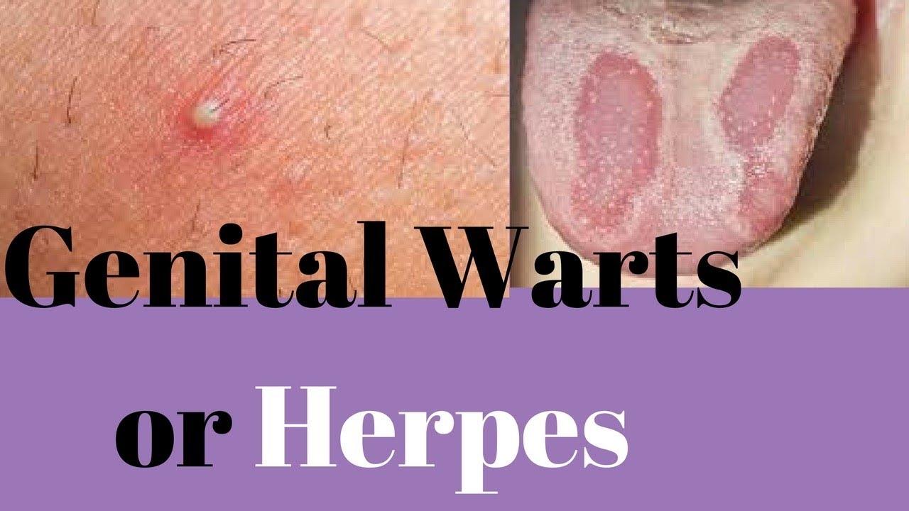 hpv herpes verschil)