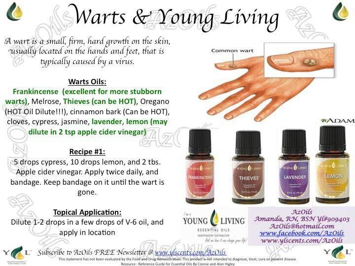 foot wart essential oil