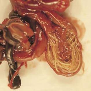 bubite de la paraziti intestinali