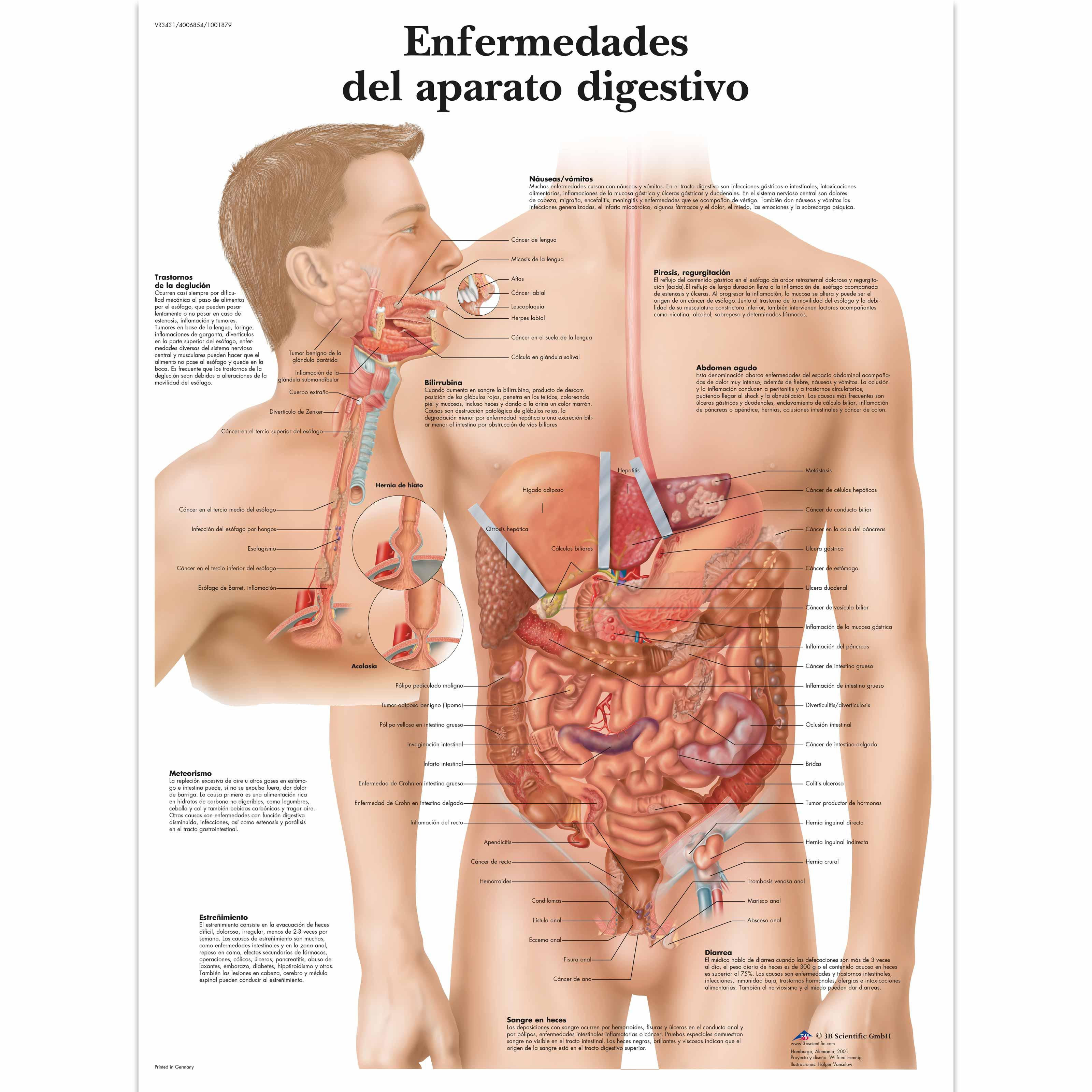 cancer de pancreas y fiebre)