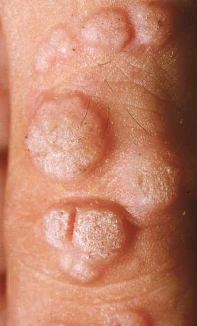 wart left foot icd 10)