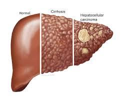 se poate trata cancerul de ficat