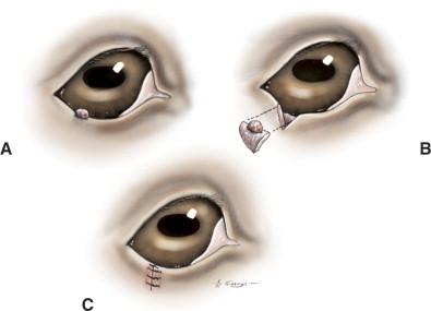 eyelid papilloma cryotherapy)