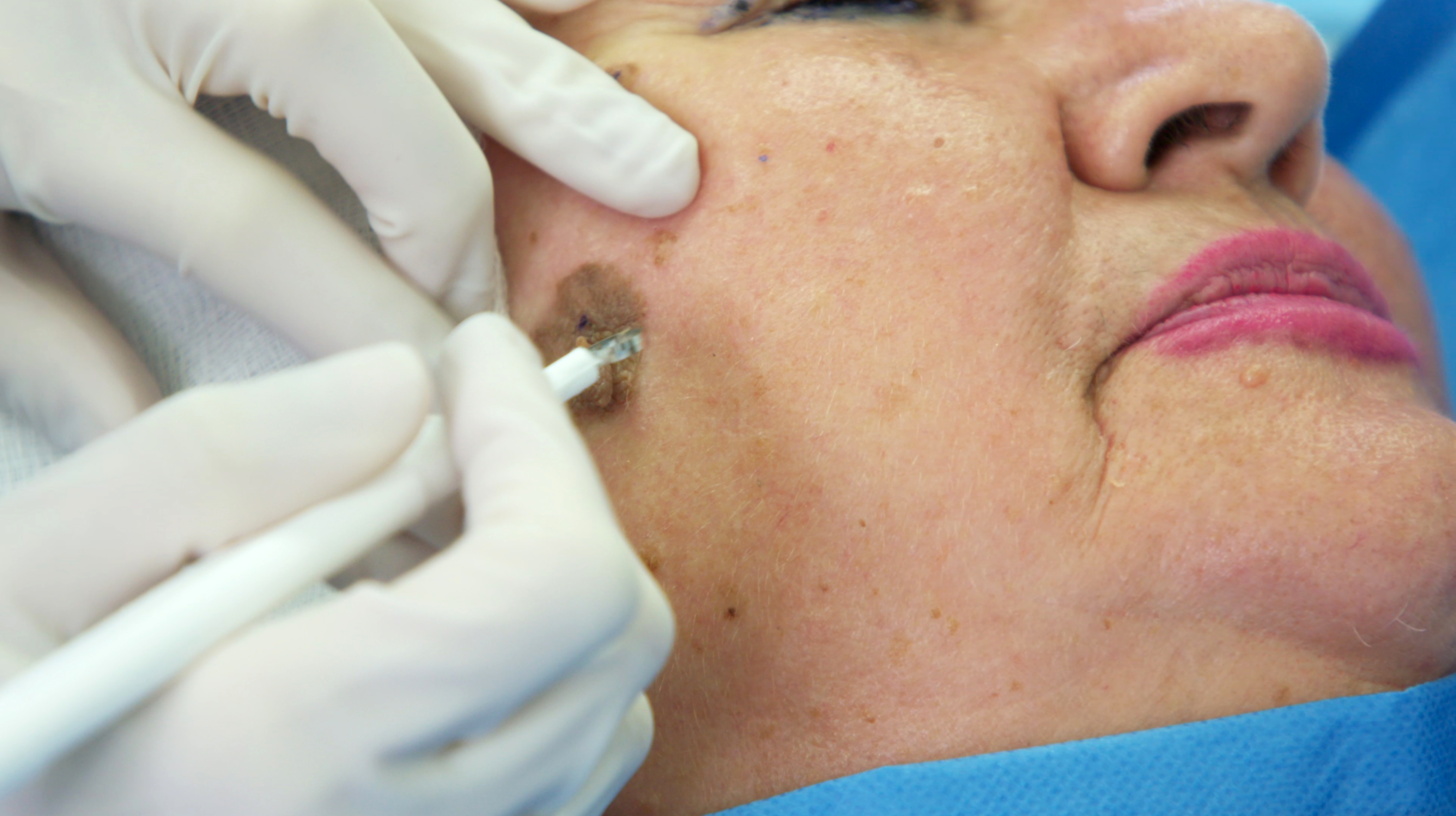 warts on skin in old age hpv treatment no warts