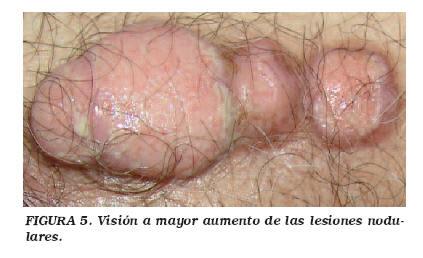 cancer de uretra femenino)