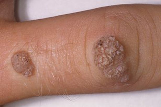 warts on hands from sun