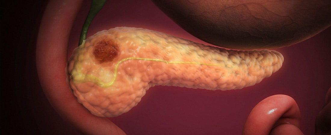 simptome cancer la pancreas