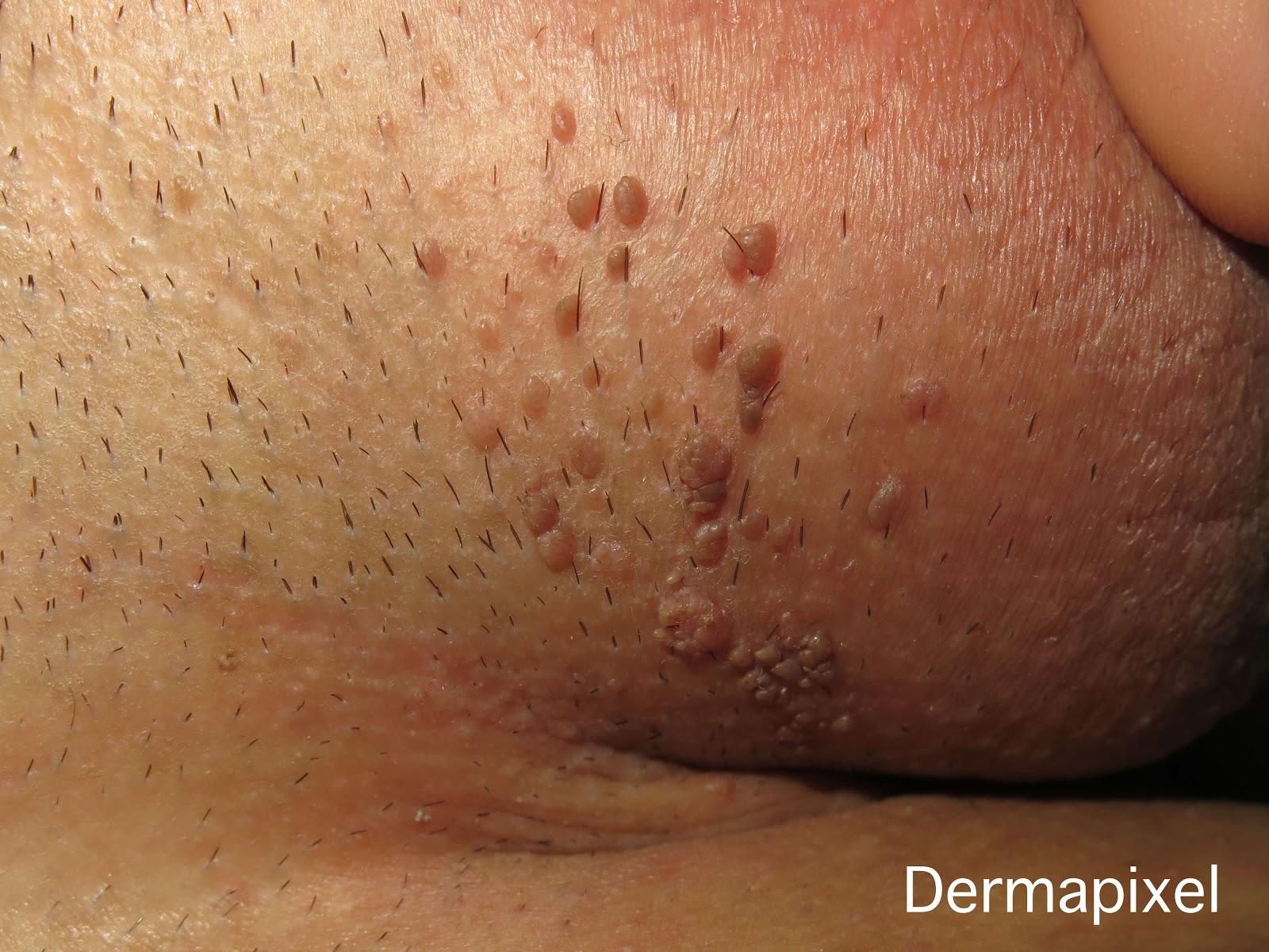 cancerul limfatic simptome papiloma virus kod beba