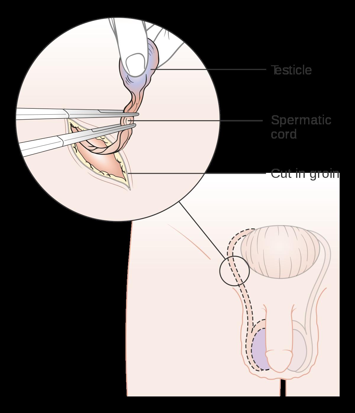 (PDF) Ginecomastia ca Semn de Prezentare Într-o Tumoră Testiculară Prezentare de Caz