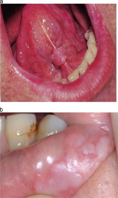 squamous papilloma tongue symptoms)