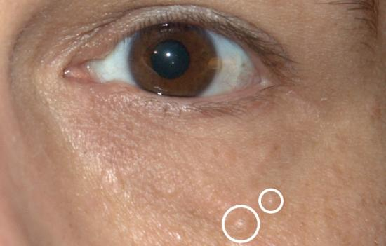 removal of papilloma on eyelid cpt